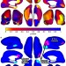 Image of Support Vector Machine Classification of Major Depressive Disorder Using Diffusion-Weighted Neuroimaging and Graph Theory
